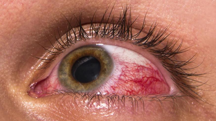 Склерит воспаление белка глаза