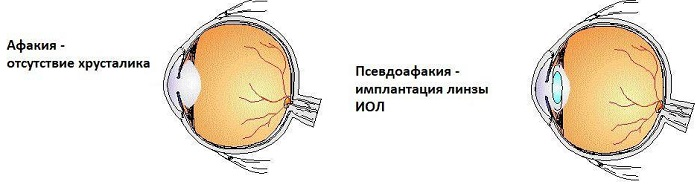 Отсутствие в зрительной системе хрусталика